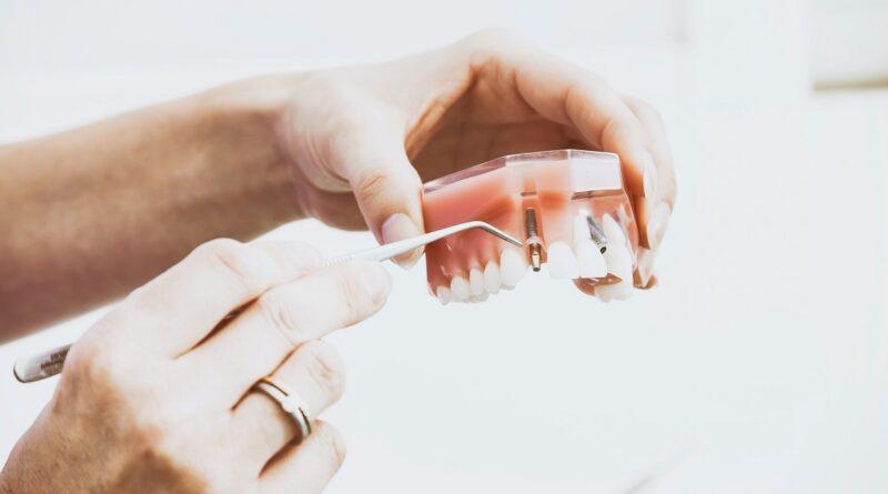 riparazione dentiere a roma